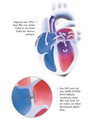 Migräne und offenes Foramen ovale